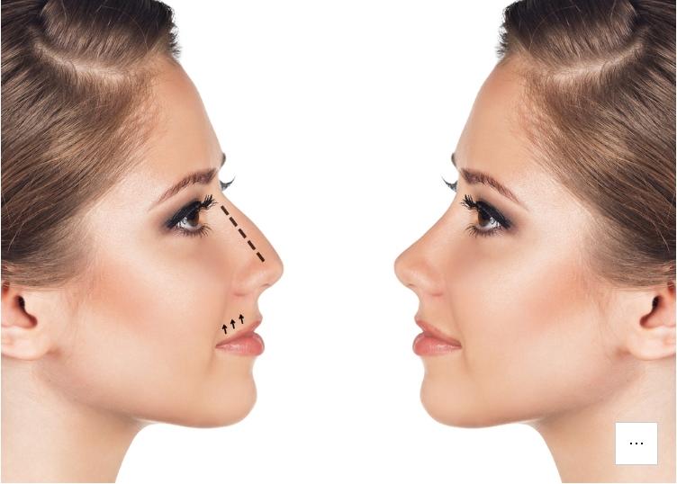 Cara Memancungkan Hidung Secara Alami dan Permanen Hanya dalam Waktu 30 Menit Saja