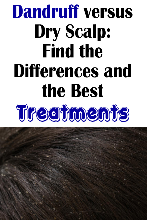 Dandruff versus Dry Scalp: Find the Differences and the Best Treatments