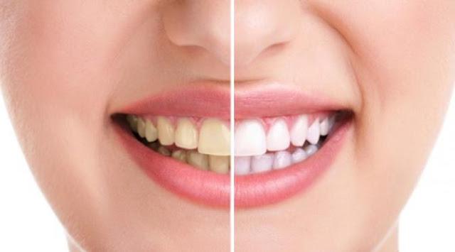 3-Bahan-Alami-Ini-Mampu-Memutihkan-Gigi