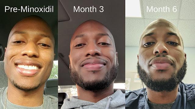 Using Minoxidil for Beard Growth  Using Minoxidil for Beard Growth beard 2Bresult