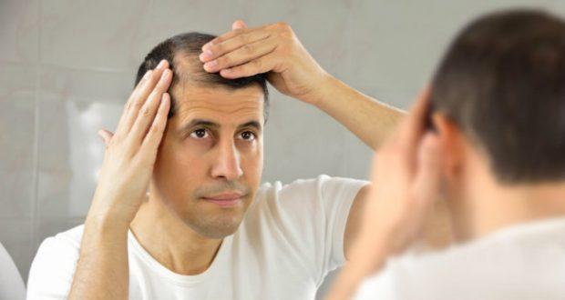 12 Remédios para Queda de Cabelo Mais Famosos Leia mais https://www.mundoboaforma.com.br/12-remedios-para-queda-de-cabelo-mais-famosos/#RHugKh32mSIkerEr.99
