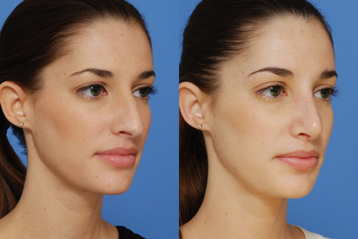 pointed-nose-rhinoplasty