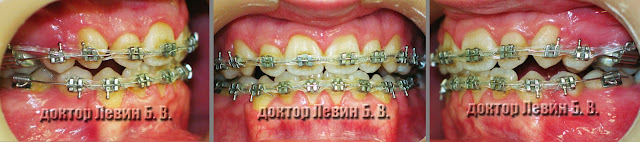 Три фото зубов характеризующие прикус пациента на 12 месяце лечения брекетами.