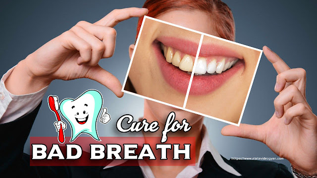 bad breath , Cure for bad breath, bad breath treatment, bad breath test, best remedies for bad breath, types of bad breath smells, foods that cause bad breath, bad breath from stomach acid, how to cure bad breath permanently, foods that give you good breath, bad breath mouthwash, can stress cause bad breath, bad breath in kids, what causes bad breath from the stomach, do cavities cause bad breath, breath smells like fart, why does my breath smell like eggs,  bad breath symptoms, bad breath home remedy, halitosis mouthwash, bad smell from mouth, odour when flossing one tooth, cancers that cause bad breath, what vitamins make you have bad breath?, can mouthwash cause bad breath, is bad breath a sign of diabetes,