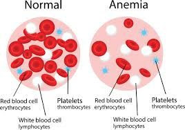 anemia treatment at home