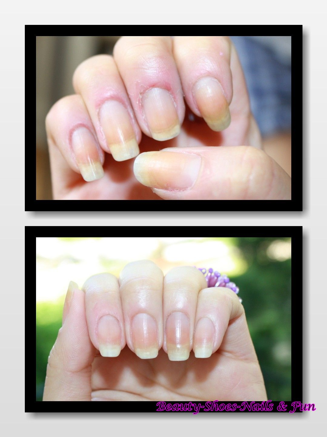 Beauty-Shoes-Nails-Fun: Pure : Cuticle Oil