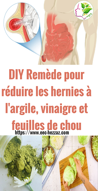 DIY Remède pour réduire les hernies à l'argile, vinaigre et feuilles de chou
