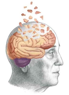 Uma ilustração conceitual de um cérebro humano afetado pela doença de Alzheimer.