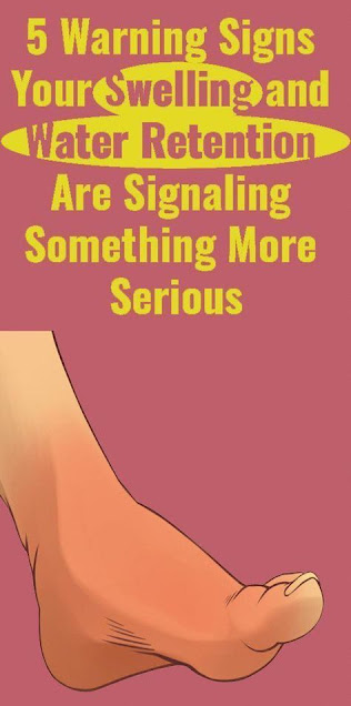 5 Signs Your Water Retention and Swelling Are Warning Something More Serious