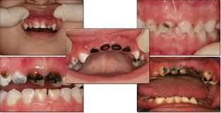 Belajar Dari Sakit Dek Alma, Kenali Gejala Sakit Gigi Pada Anak Dan Cara Mengatasinya