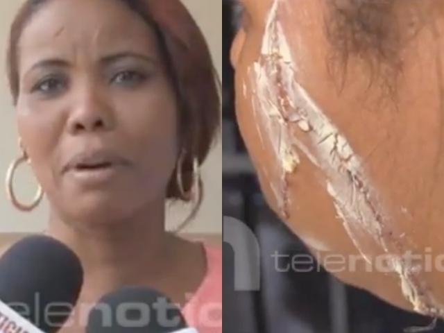 Video: Estudiante desfiguró a otra con una tijera en escuela