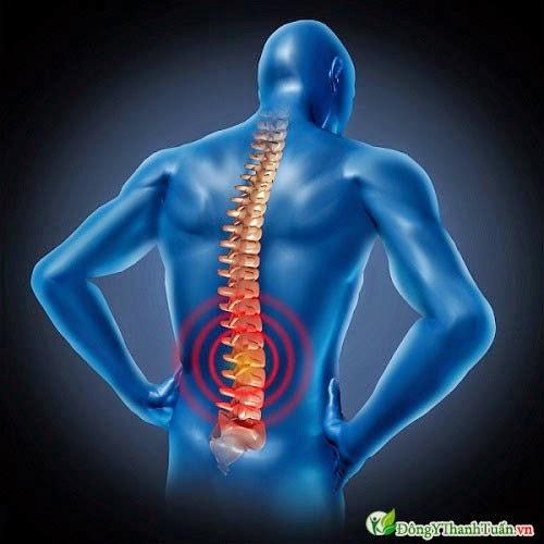 Đau Lưng triệu chứng của bệnh thoát vị đĩa đệm
