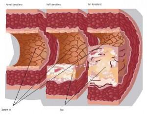 Bahaya kolesterol dan dampaknya bagi kesehatan
