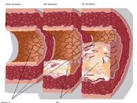Gejala, bahaya kolesterol dan dampaknya bagi kesehatan