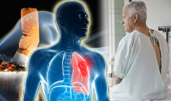Lung Cancer is a Common Disease