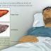 Obstructive Jaundice Cause, Symptoms & Treatment