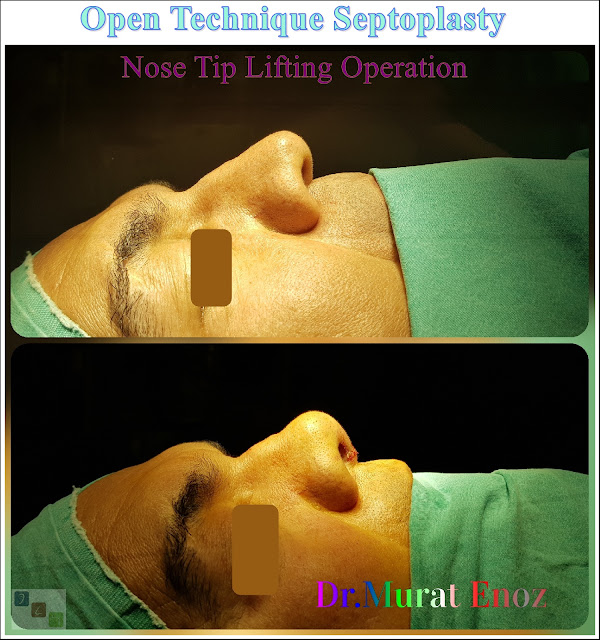 Nose tip lifting in İstanbul,Open technique nose tip plasty in İstanbul,open technique septoplasty in İstanbul,Open tecnique septoplasty operation,Nose tip lifting in Turkey,