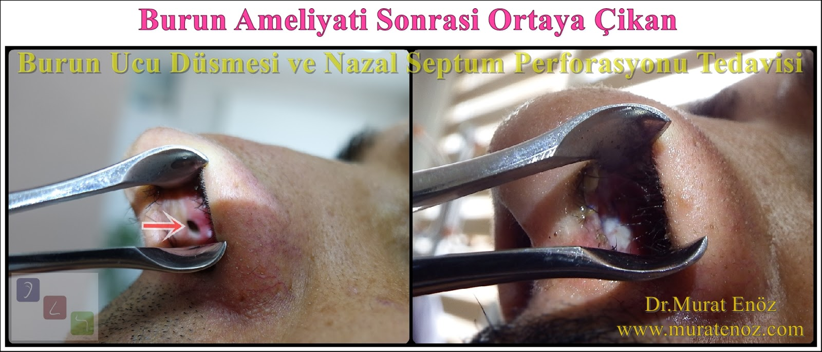 Nazal septum perforasyonu - Septum perforasyonu ameliyatı olanlar - Septum perforasyonu olanlar - Septum perforasyonu ameliyatı yapan doktorlar - Burunda delik oluşumu - Burun duvarında delik - Burun kıkırdak delinmesi tedavisi - Septum perforasyonu ameliyatı olanlar - Septum perforasyonu olanlar - Septal perforasyon tamiri - Septal buton uygulaması - Nazal septum perforasyonu tedavisi - Nazal septum perforasyonu nedenleri - Nazal septum perforasyonu belirtileri - Septum perforasyonun cerrahi onarımı - Burun delinmesinin nedenleri - Nazal septum perforasyonu tanısı - Erkek burun estetiği - Burun estetiği ameliyatı - Definition of Nasal Septal Perforation - Causes of Perforated Nasal Septum - Symptoms of Nasal Septal Perforation - Diagnosis of Nasal Septal Perforation - Surgical Treatment For Nasal Septal Perforation - Nasal Septal Perforation Repair - Surgical Repair of Nasal Septal Perforation
