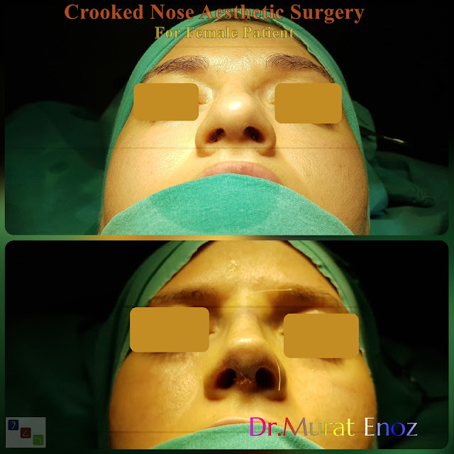 Crooked Nose Aesthetic Surgery For Women