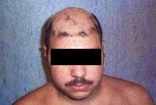 consentito invece di porre diagnosi di VKH. L esame obiettivo dermatologico  era caratterizzato da chiazze di vitiligine eed629117742