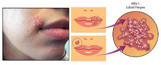 Obat Infeksi Herpes pada Mulut