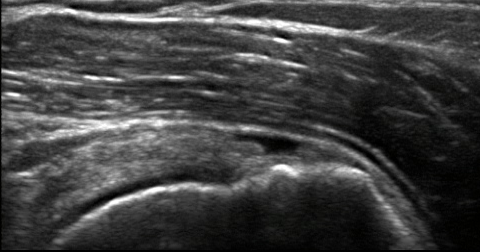 Shoulder Arthritis  Rotator Cuff Tears causes of