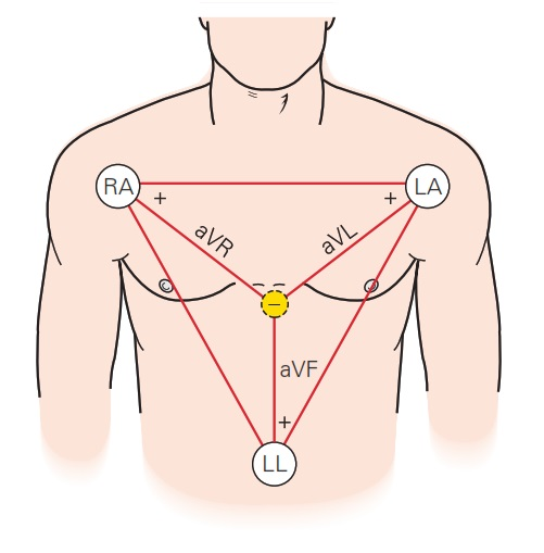 Standard Chest Lead Electrode Placement