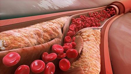 """Dr. La Rosa: """"Baja tu colesterol y limpia tus arterias así"""""""