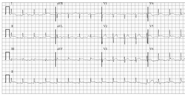 ECG of acute pericarditis