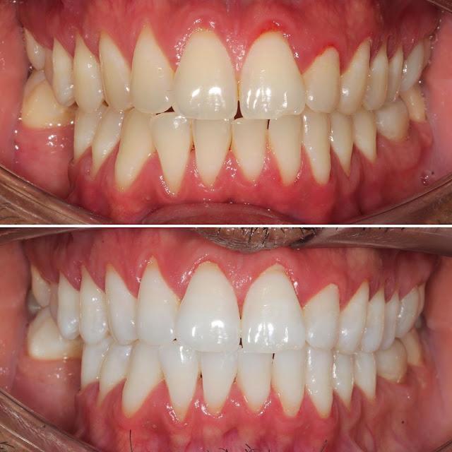 Ce sont les secrets des dents plus saines et plus blanches