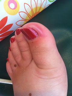 Daily Diabetic Toe Infected Again