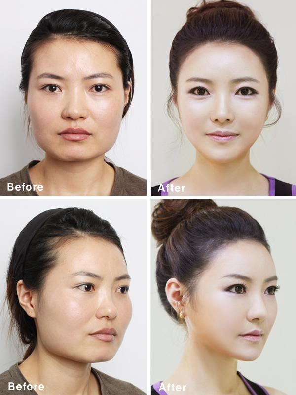American Origins Behind South Korea S Plastic Surgery Craze
