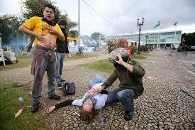 Professores feridos o resultado da-violência policia a mando do governador truculento com os educadores do Paraná..