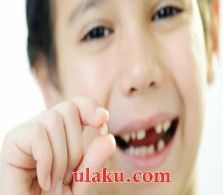 Cara Mengobati Gigi Berlubang, obat sakit gigi, obat alami sakit gigi
