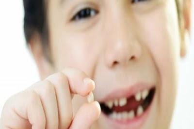 Cara Mengobati Gigi Berlubang dan Ngilu