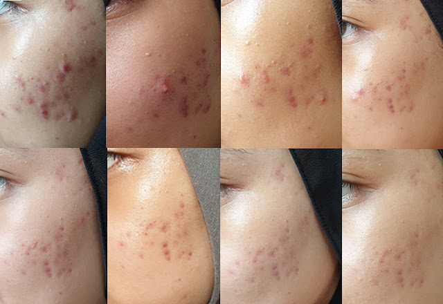AXIS-Y ampoule recover acne