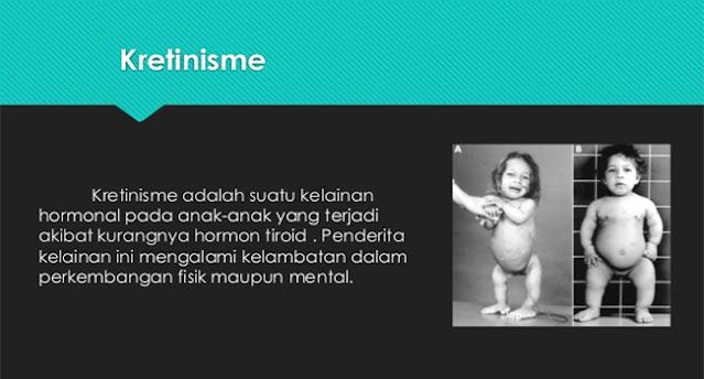 Kretinisme, Kretinisme pada anak, bahaya Kretinisme, perlambatan pertumbuhan Kretinisme, kelainan hormonal Kretinisme
