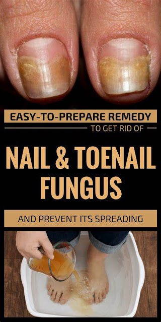 9 Simple Ingredients to Remove The Fungus From Toenails