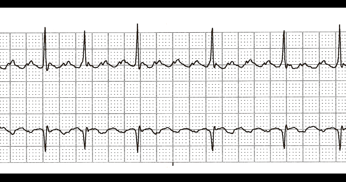 Float Nurse: Practice EKG Strips 344