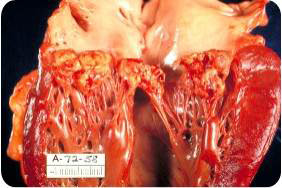 Infective_endocarditis