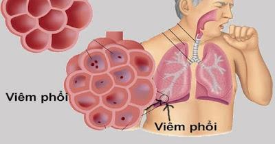 Cách phòng chống lây nhiễm bệnh viêm phổi lạ - Virus Corona