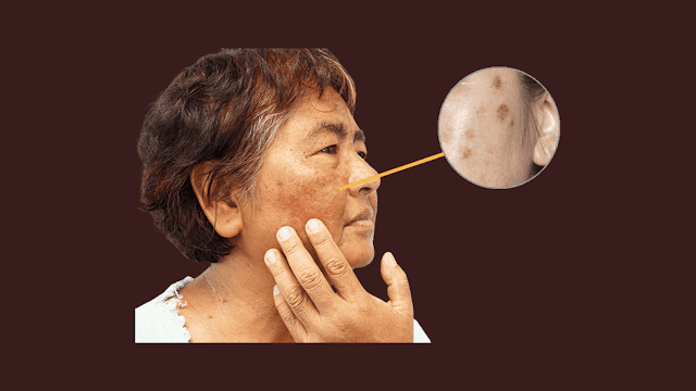 Removal Tips for Skin Pigmentation of Mouth and Knees