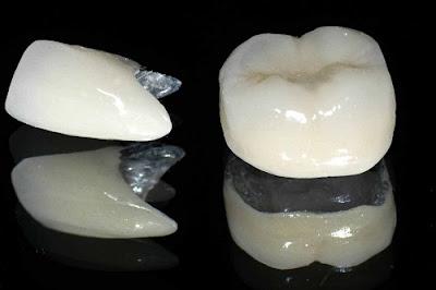 so sánh răng sứ kim loại và răng sứ không kim loại -2