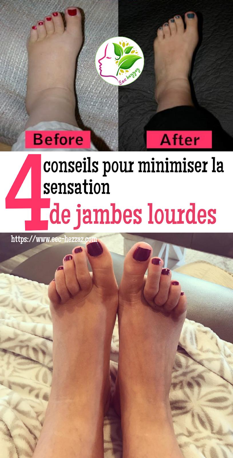4 conseils pour minimiser la sensation de jambes lourdes