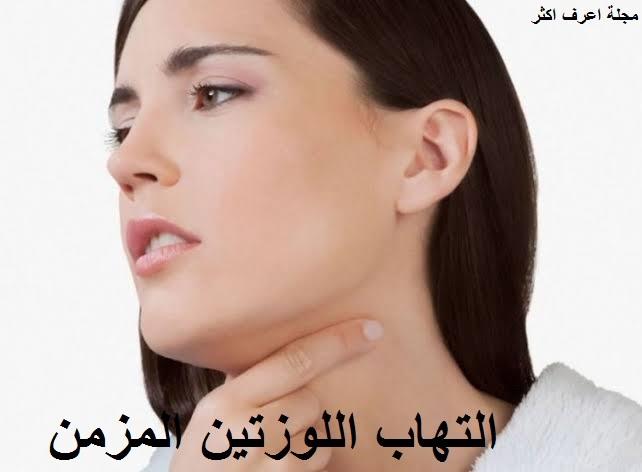 التهاب اللوزتين المزمن