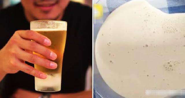 Setiap Hari Selalu Minum Bir, Lutut Pria Ini Sampai Membengkak Dan Penuh Cairan