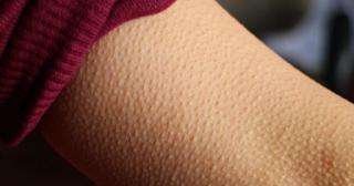 Επιστήμονες: Αν η μουσική σας ανατριχιάζει τότε ο εγκέφαλός σας είναι εξαιρετικός
