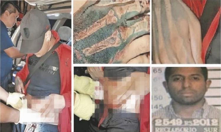 """Sobrino de """"La Pulga"""", cabecilla de la """"Unión Tepito"""" engaña a la policía y se da a la fuga de hospital en CdMx"""