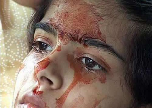 Mengerikan! yang Biasanya Keringat Itu Air, Lain Halnya Dengan Gadis ini Dia Berkeringat Darah!