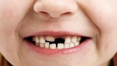 mimpi gigi geraham copot